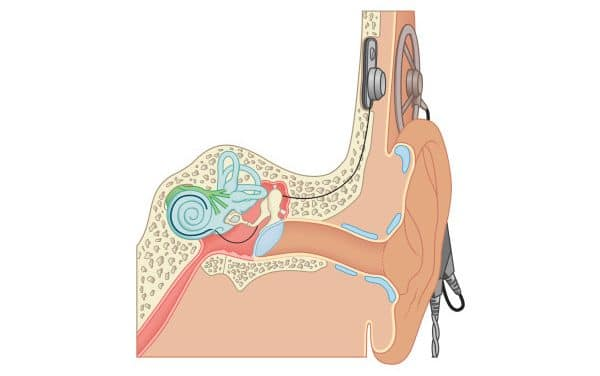 What is a cochlear implant and how to obtain one in the province of Quebec